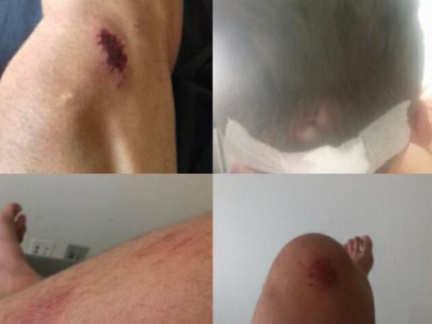 Casal vítima de homofobia é espancado com pá após abraço: 'bichinhas'