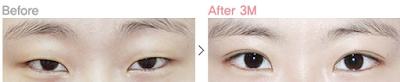 sebelum dan sesudah operasi plastik mata Korea - canthoplasty