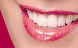 Quy trình bọc răng sứ tại nha khoa Việt Úc