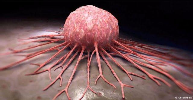 Ternyata Kanker Bukanlah Penyakit Tapi Bisnis, Ini Penjelasannya