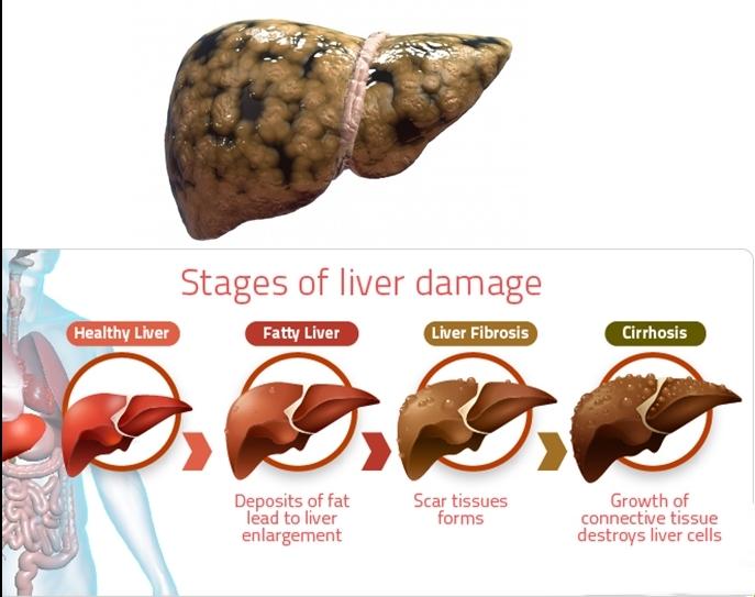 Hepatitis: Penyebab, Gejala, dan Pengobatannya