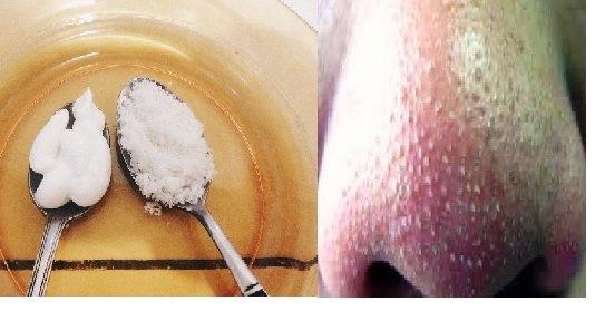 Cara Bersihkan Komedo Dalam Sekejap
