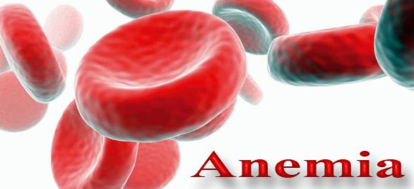 Penyakit Anemia Dan Cara Pengobatannya