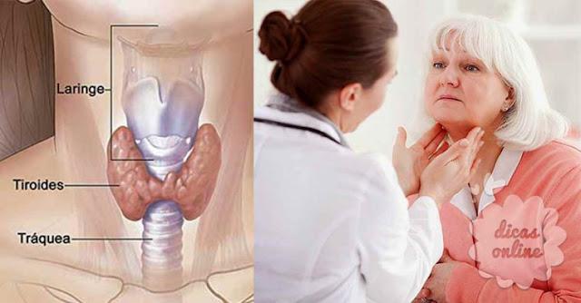 activa la glándula tiroides con este ejercicio