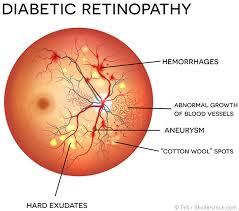 Eye Tips Beware Of These 5 Retina Problems Sharp Sight
