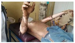 LPG 3Kg kembali makan korban di Pidie,Aceh