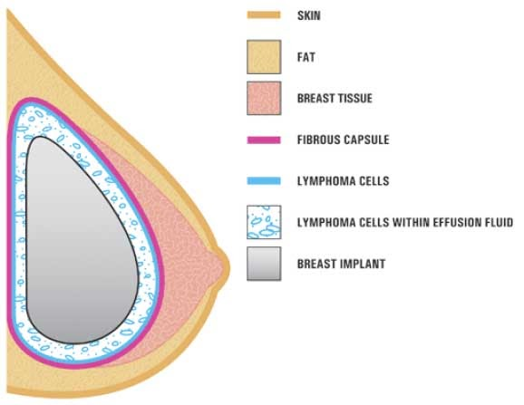 Breast Implants And Lymphoma Cancer Aaron Stone Md