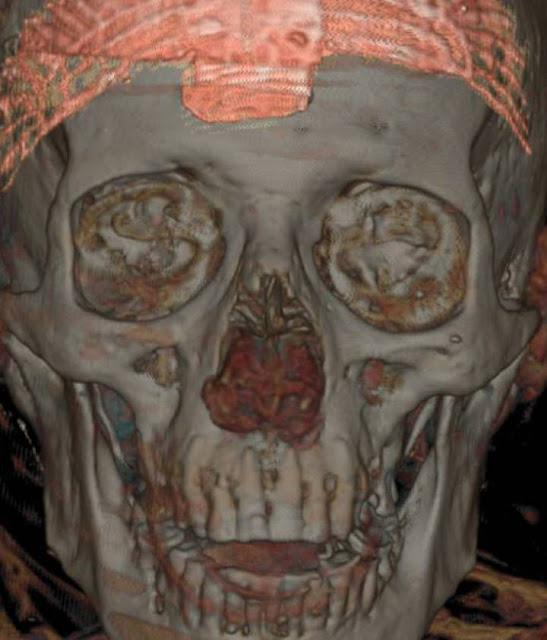 Madrid mummy found to be Ptolemy II's eye doctor