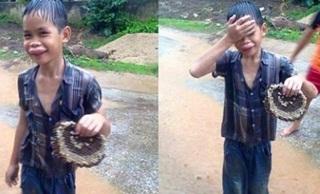 Foto Bocah Tersenyum Habis Disengat Tawon Ini Mendadak Jadi Viral di Internet. Kamu Mau Tahu Kenapa