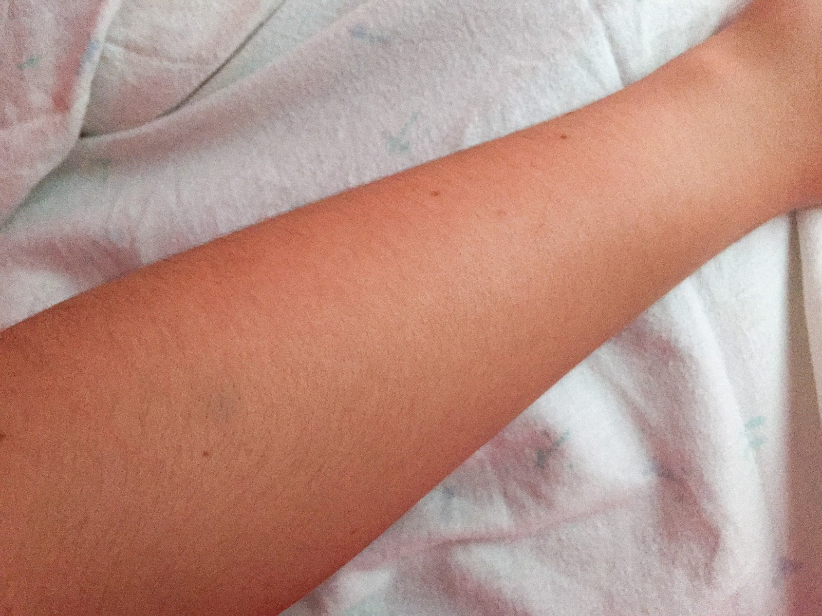 St Moriz Fast Self Tanning Mousse Before and After