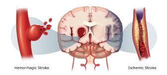 obat stroke dari dokter