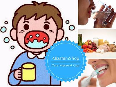 Cara merawat agar gigi tidak berlubang dengan sering berkumur, menggosok gigi, mengkonsumsi makanan sehat, minum air putih yang banyak, dan masih banyak lainnya