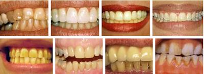doğal yollarla diş beyazlatma