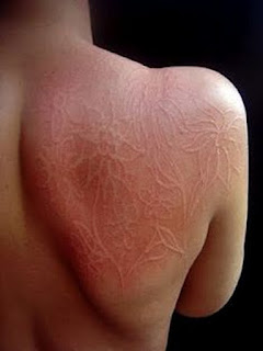 A skin writing at the back of the patient.image