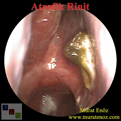 Atrophic rhinitis, medical treatment of atrophic rhinitis, merciful anosmia, ozaena, rhinitis sicca anterior, surgical treatment of atrophic rhinitis, treatment of atrophic rhinitis