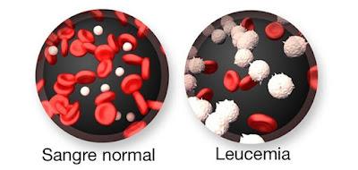 sangre, leucemia