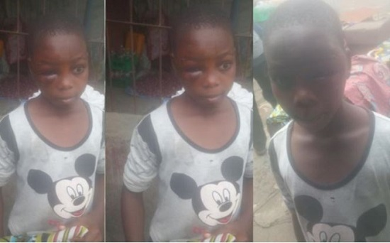 See What A Wicked Uncle Did To 11-Year-Old Girl In Lagos