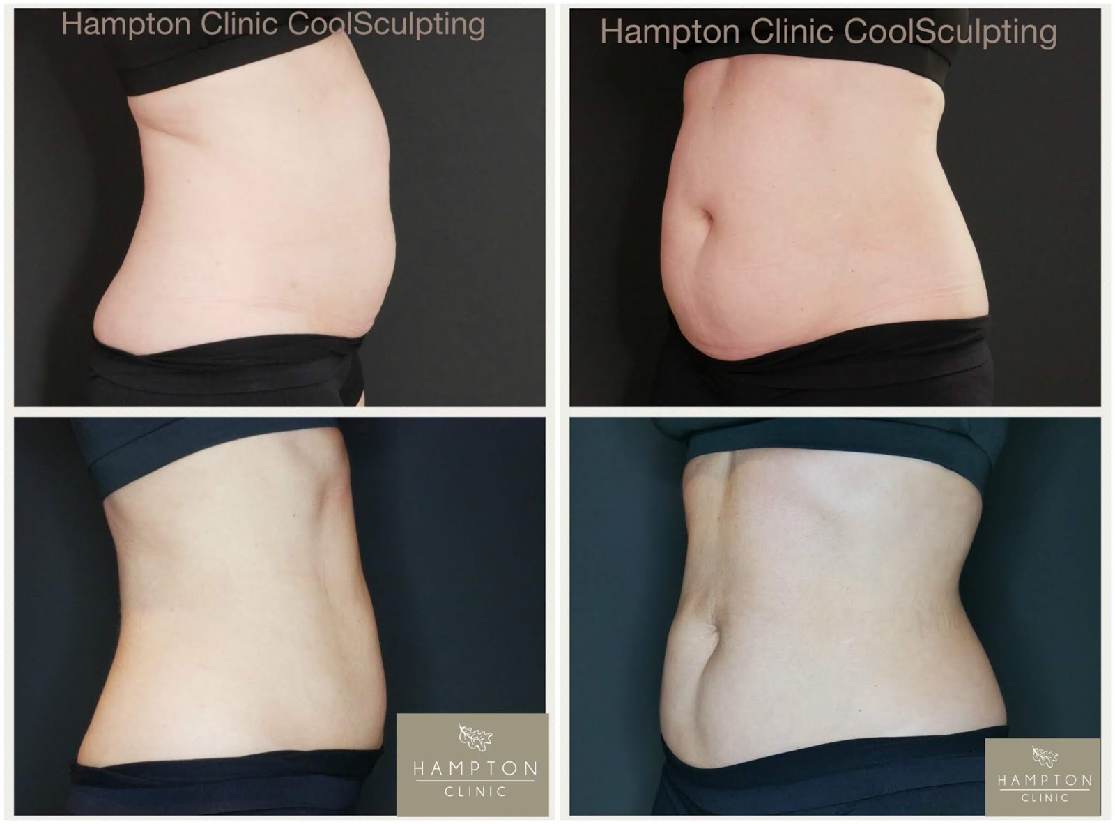 Coolsculpting treatment \ before and after photos