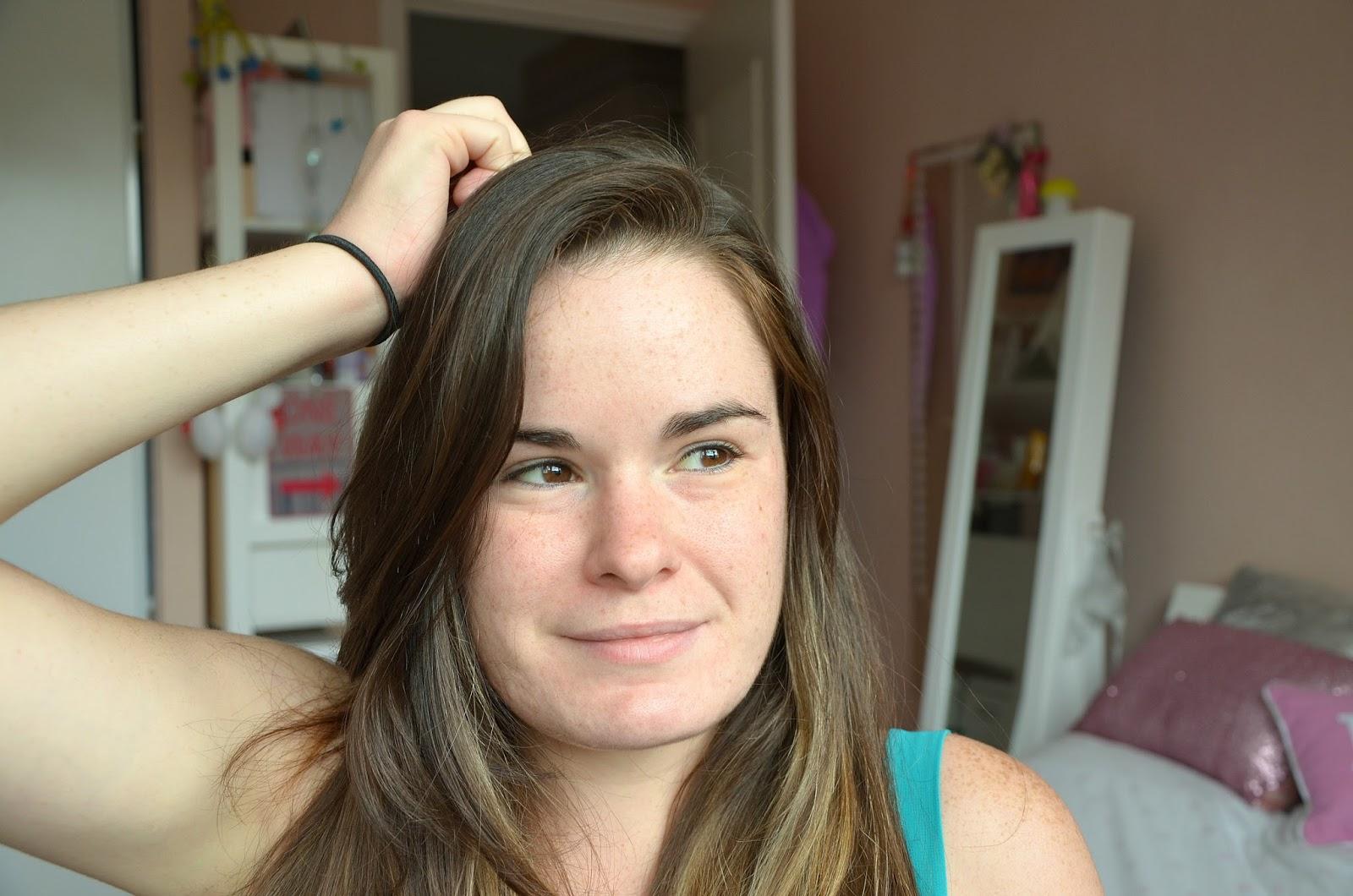 Mon combat et traitement contre l'acné sixième mois