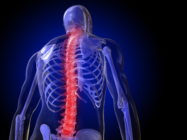 10 Ways to Relieve Back Pain Without Medication