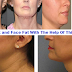 Try Losing Neck and Face Fat With The Help Of This 5 Pointers And Be Glad With The Results!
