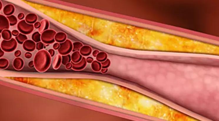 Fakta Tentang Kolesterol yang Harus Diketahui