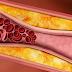Fakta Tentang Kolesterol yang Harus Diketahui, Jangan Cuma Tau Sebut Saja