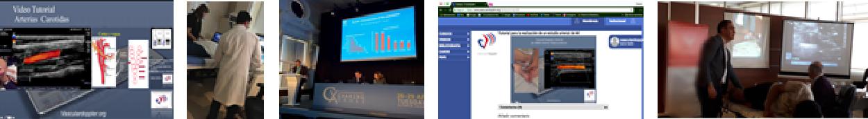 Curso taller e-Vascular Doppler - El blog de Tecnoimagen