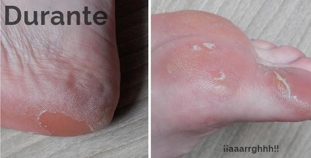 Peeling pies antes después
