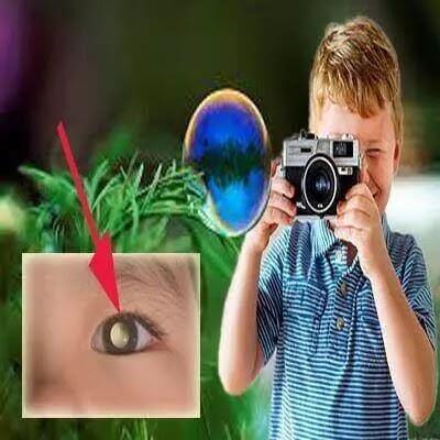 اذا رأيت هذا في صور طفلك فاستشير طبيبك