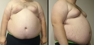 kegemukan, obesitas, berat badan, diet sehat