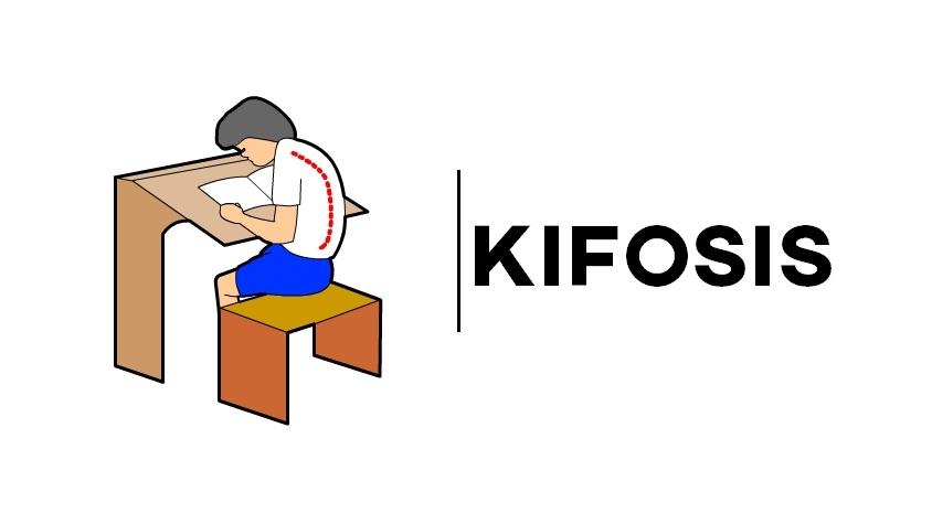 Kifosis