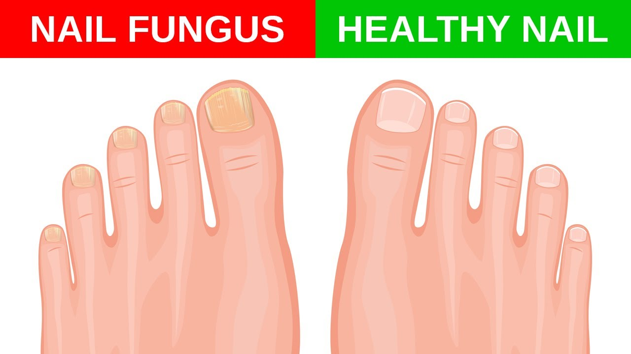 4 Simple And Effective Remedies To Treat Nail Fungus At ...