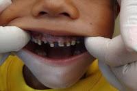 Remèdes à la maison pour les dents pourries