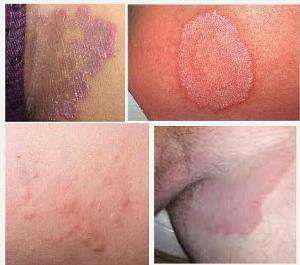 obat jamur kulit gatal gatal pada sekitar selangkangan di apotik