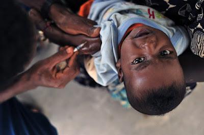 Difteri - Pengertian, Gejala, Penyebab, dan Cara Mengobati