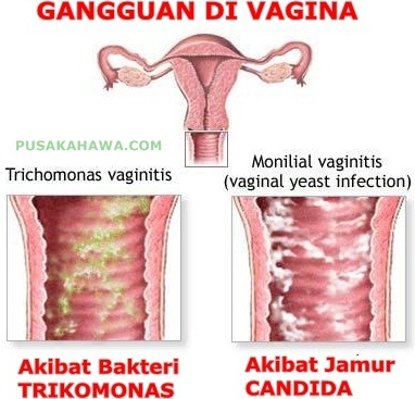 jamur di vagina
