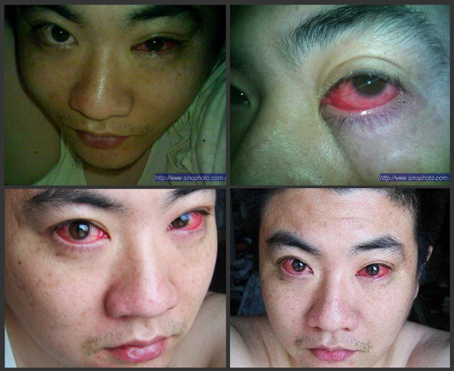 This Man Was Diagnosed With Eye Cancer And The Doctor Revealed Something About His Condition That Shocked Him!