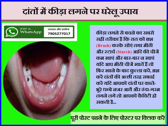 दांतों में कीड़ा लगने पर घरेलू उपाय