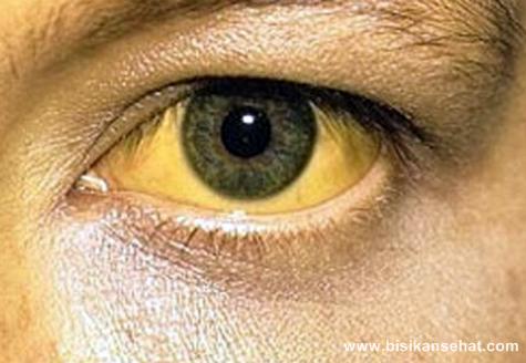 Cara Mengatasi Penyakit Kuning