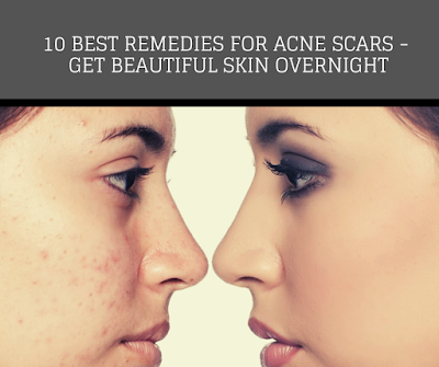 10 Best Remedies For Acne Scars - Get Beautiful Skin Overnight