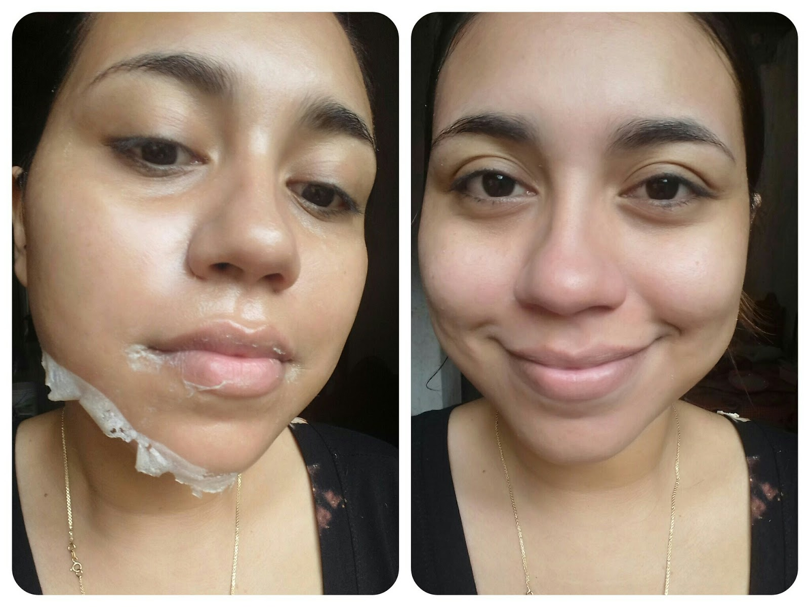 Máscara para retirar cravinhos do rosto.