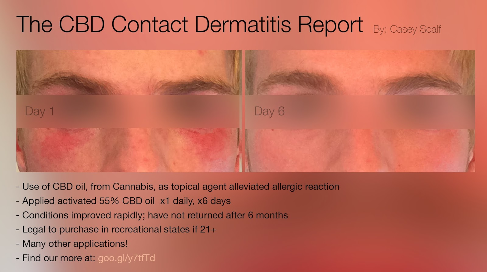 Commune to Humanity: The CBD Oil Contact Dermatitis Report