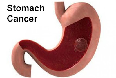 At stomach cancer is a malignant tumor in the stomach Stomach Cancer: Causes, Symptoms, Diagnosis And Treatment