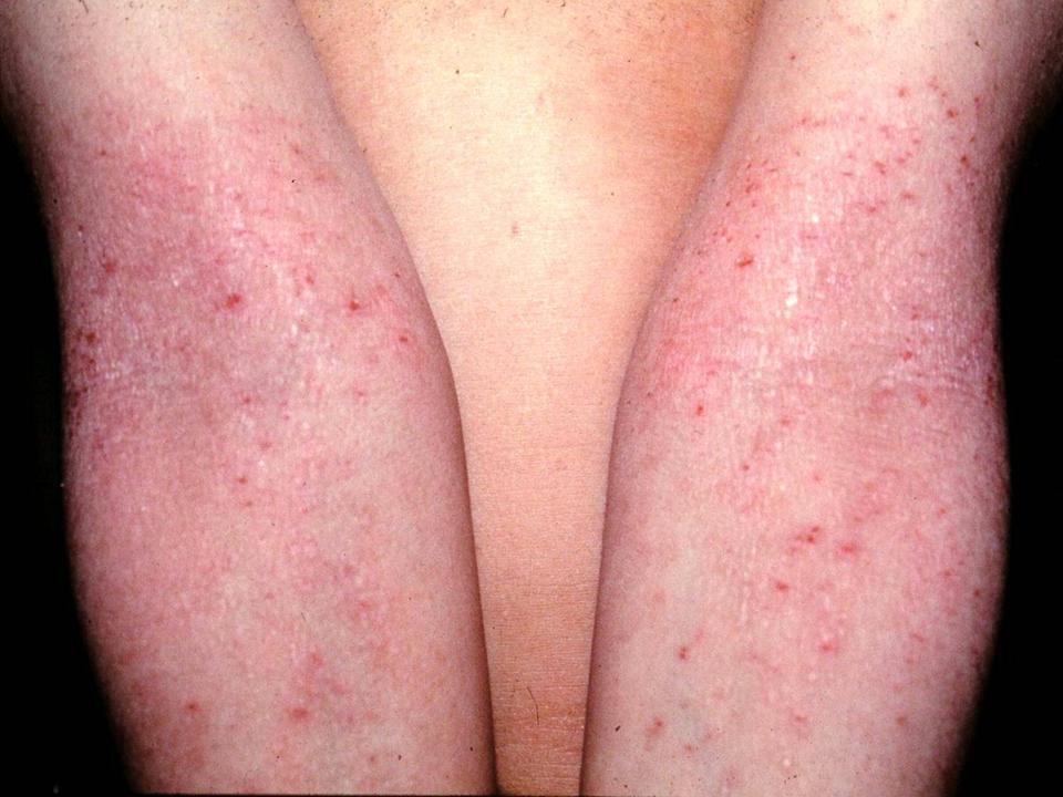 La psoriasis el tratamiento del ungüento no hormónico