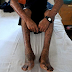 How health education, vaccinations curb leprosy? Doctors