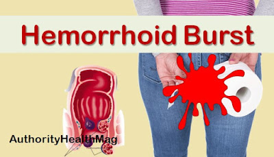 Penyakit Hemoroid