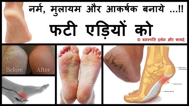 Narm Mulayam or Aakrashak Banaye..!! Fati Aidiyon ko