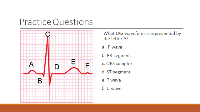 Telemetry Technician Course: EKG Waveform Practice Questions (class ...