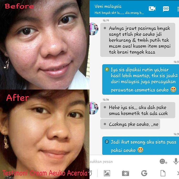 Obat Jerawat Di Kemaluan Wanita Menurut Dokter Boyke: Liany Beauty Jual Cream Wajah Produk Kecantikan Dan